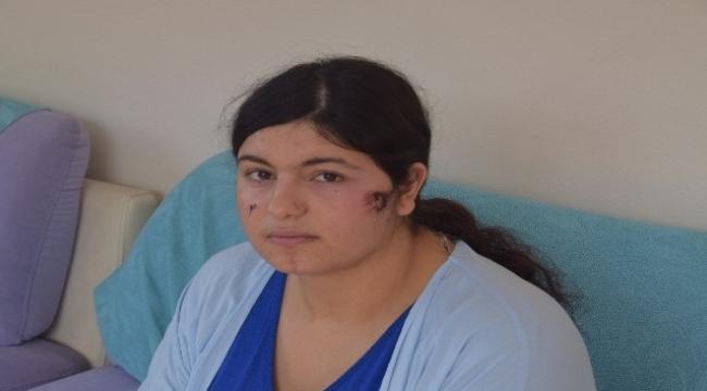 Aliağa'da kocası tarafından darp edilen kadın dehşet anlarını anlattı